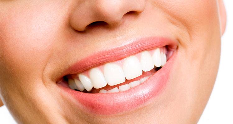 sonrisa 1